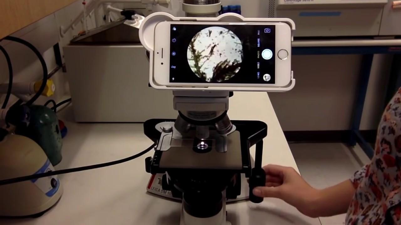 Un accessorio trasforma lo smartphone in un microscopio thumbnail
