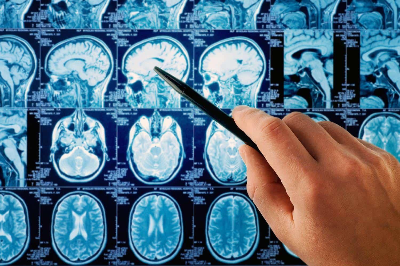 Tumori al cervello: Nvidia al lavoro su un sistema per scansionarli thumbnail