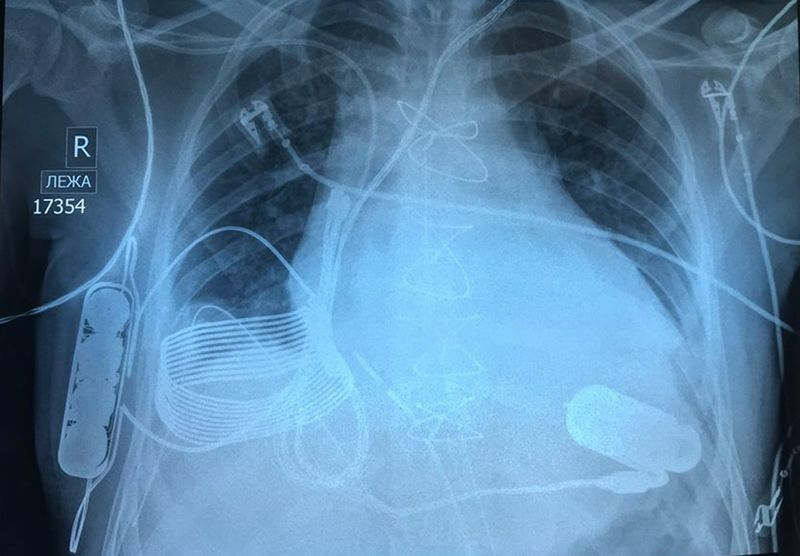 Il primo cuore bionico con ricarica wireless thumbnail