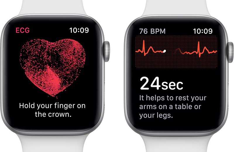 Apple Watch: disponibili ECG e notifiche sul battito cardiaco irregolare thumbnail