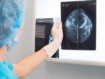 Google tumore al seno