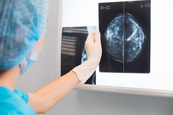 Google rivela il tumore al seno grazie alla propria Intelligenza artificiale thumbnail