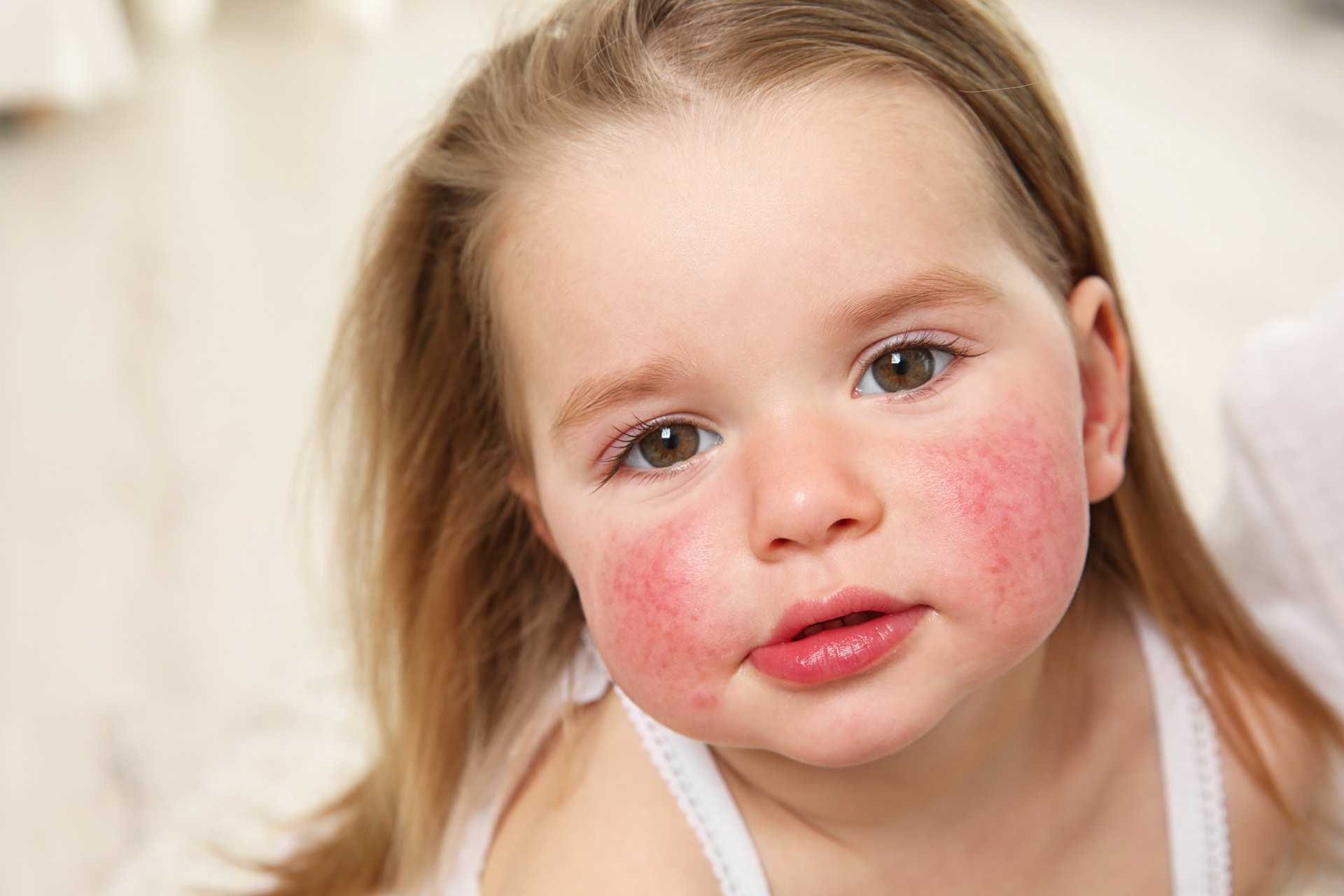 rimedi naturali allergia bambini