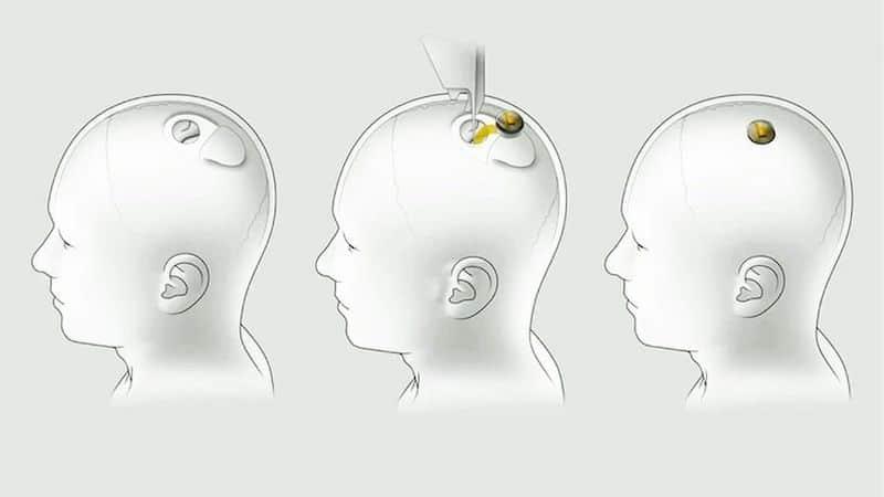 elon musk chip cervello