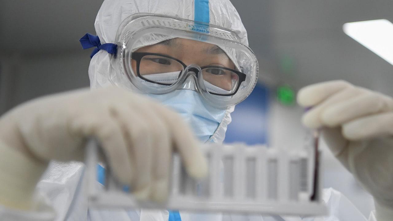 Scoperte le prime sequenze del Coronavirus thumbnail