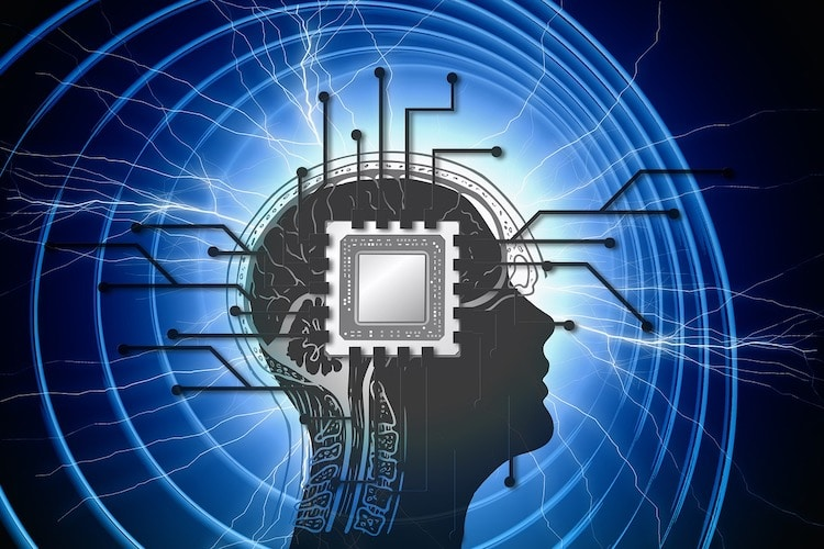 impianti neuronali